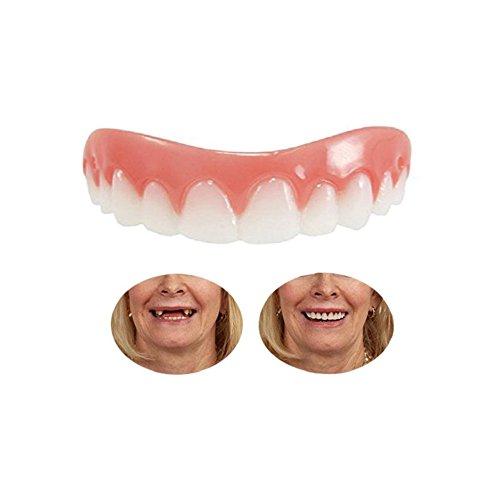 Perfekte Smile Veneers Oberkiefer Provisorischer Zahnersatz Zahnprothese Oberkiefer Quick Dental Kosmetische Zähne Oberkiefer Prothese Veneer Für ein perfektes Lächeln