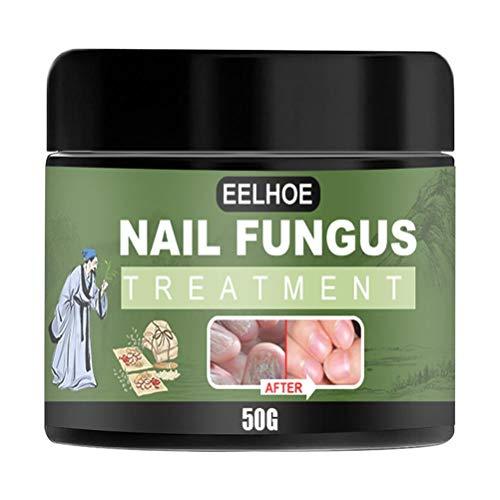 Yusat Nagelförtjockning behandling av nagelsvamp, svampstopp, anti-svampbehandling, nagelsvamp behandlingskräm, anti-svamp nagelbehandling, tånaglar och fingernaglar lösning, återställer tånagel svamp