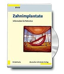 Zahnimplantate, 1 DVD