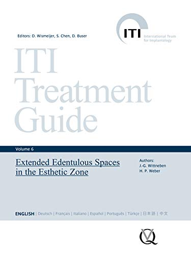 Extended Edentulous Spaces in the Esthetic Zone (ITI Treatment Guide Series Book 6) (English Edition)