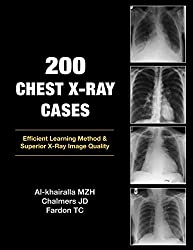Best book for chest x ray