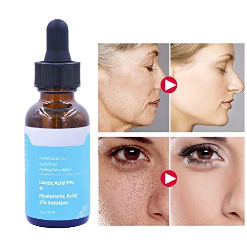 Cocohot Milchsäure-Serum, Hyaluronsäure, Feuchtigkeitsspendendes Peeling Gesicht Pflege Serum 30ml