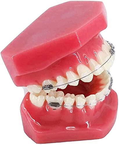 金属とセラミックのブラケットを備えた人間の臓器モデル歯科歯矯正モデル歯科医が患者とコミュニケーションするためのモデルを口頭で示すM
