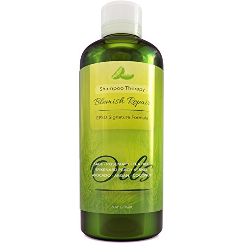 Best Dandruff Shampoo for Irritated & Itchy Scalp - Sensitive Skin Shampoo for Dandruff & Cradle Cap - All Natural Dry Scalp Treatment for Hair Loss Hair Growth & Hair Regrowth - Beautiful Hair Care