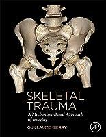 Skeletal Trauma: A Mechanism-Based Approach of Imaging
