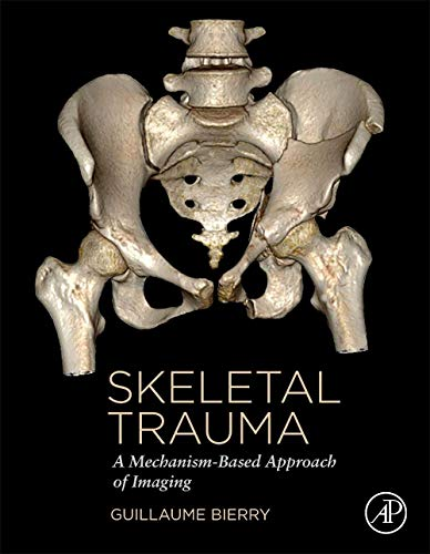 Skeletal Trauma: A Mechanism-Based Approach of Imaging