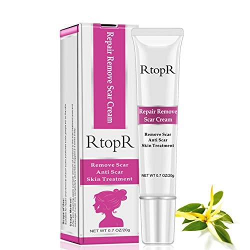 ForceSthrength RtopR Akne-Narben-Entfernungs-Creme Schneller Hautmarken-Entferner Entfernen Sie Narbencreme-Narben-Gel