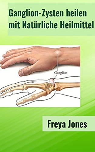 Ganglion-Zysten heilen mit Natürliche Heilmittel
