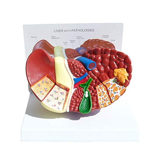 ALBB Liver Anatomical Model - 3D Anatomical Pathological Liver Structure Science Anatomy Visceral Models - for Medical Educational Training Aid Human Liver Model