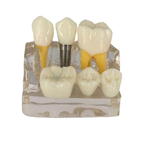 CLHCilihu Dental-Modelle Transparente Harz Dental Demonstration Ausbildung Zahnmodell Implant Analyse Crown Brücke für Zahnarzt Schule Studie Lehre