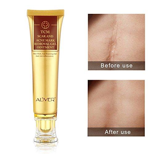 TCM Gel de eliminación marcas cicatrices y acné, crema ombligo, antiinflamatorio la piel la crema, para reparar la cara, las manchas acné, la crema blanqueamiento y las marcas elásticas 30 ml