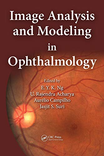 Image Analysis and Modeling in Ophthalmology (English Edition)