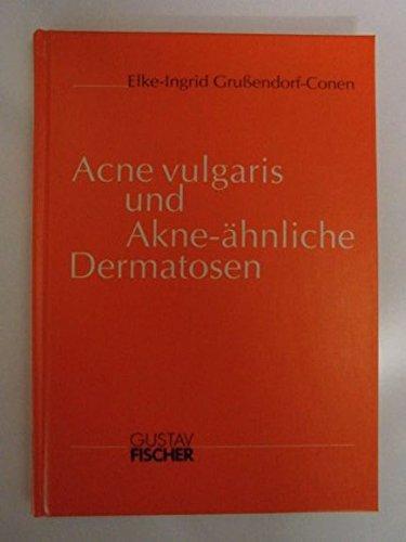 Acne vulgaris und Akne-ähnliche Dermatosen