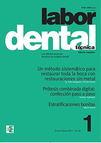 Prótesis combinada digital: confección paso a paso: Labor Dental Técnica