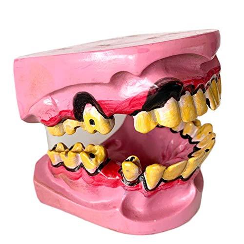 Albb - Modelo de dientes enfermos - Modelo de odontología común en fumadores humanos - Modelo de dientes patológico - Modelo oral - Cuidado dental - Modelo de educación de pacientes