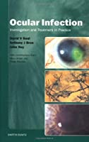 Ocular Infection: Management and Treatment in Practice
