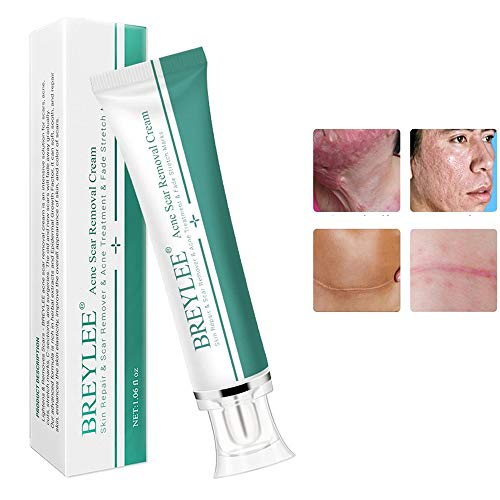 Acne Scar Removal Cream, Face Pimpl…