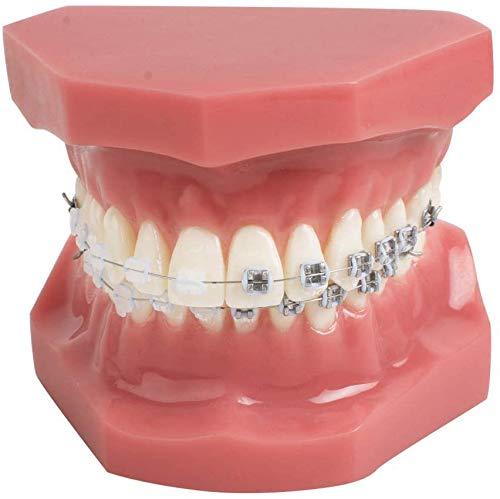 Vinbcorw Unterstützt Zahnmodell, TipoDonto Dental mit geistigen Klammern Kieferorthopädie Zähne Modellbehandlung mit Ligature Red Tie, mit Anti-Nagel-Lehrmodell,Rot