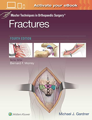 Compare Textbook Prices for Master Techniques in Orthopaedic Surgery: Fractures Fourth Edition ISBN 9781975139407 by Gardner MD, Michael J.