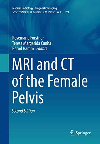 Compare Textbook Prices for MRI and CT of the Female Pelvis Medical Radiology Softcover reprint of the original 2nd ed. 2019 Edition ISBN 9783030132538 by Forstner, Rosemarie,Cunha, Teresa Margarida,Hamm, Bernd