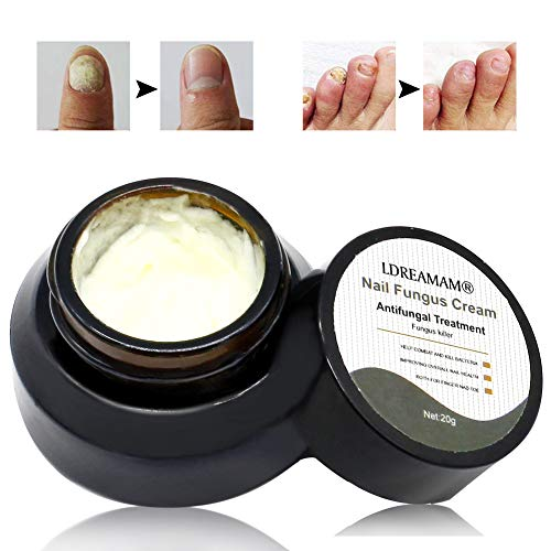 Nail Repair Cream,Fungus Treatment Cream,Foot Nail Cream,natural nail treatment,Toenail Fungus Treatment Cream Against Toe Nail Infections Discolored & Damaged Nails