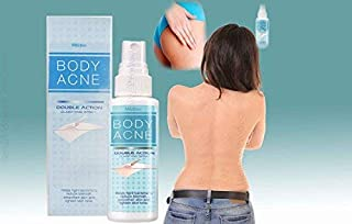 Mistine Body Acne Double Action Anti Back Butt Blemish Pimple Treatment 50 ML