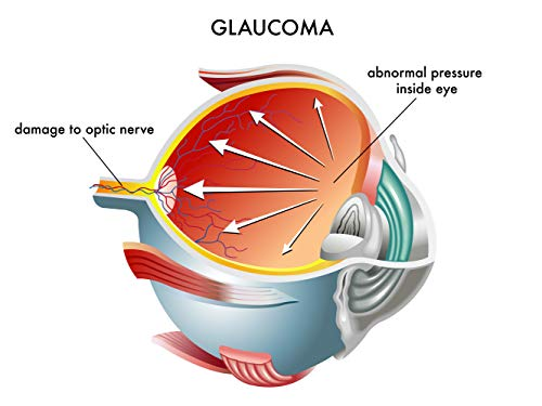 GLUACOMA:   COMMON QUESTIONS    ASKED  ABOUT  GLUACOMA: OPHTHALMOLOGIST (English Edition)
