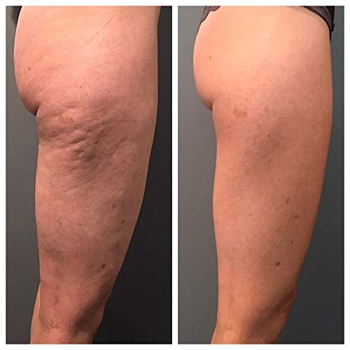 Hot Ginger Körpersalz, tianDe 30258, 150g, Verbrennt die Unvollkommenheiten der Figur