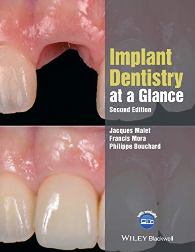 Implant Dentistry at a Glance (At a Glance (Dentistry))