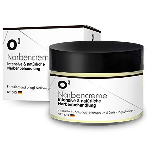 O³ Narbencreme // Narbensalbe gegen Narben und Dehnungsstreifen // Stretch mark cream – scar remover // Aknenarben entfernen