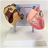 Modelo de anatomía de órganos humanos Modelo de corazón, Modelo de comparación de corazón fumador y corazón normal, Modelo de corazón anatómico, para modelo de enseñanza de exhibición de estudio