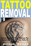 Tattoo Removal: Quick Guide To Your Options For Removing Your Tattoos Fully Or Partially!