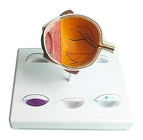 JKFZD Modelo de Ojo anatómico de órgano Humano Modelo de Ojo de Glaucoma Modelo de Glaucoma anatómico médico (Size : 18x18x15cm)