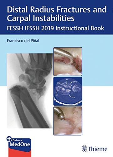 Distal Radius Fractures and Carpal Instabilities: FESSH IFSSH 2019 Instructional Book