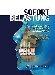 Sofortbelastung: Eine neue Ära der dentalen Implantologie