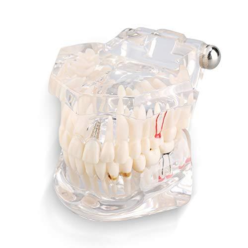 Modelo Dental Modelos Dentales Fantoma Dientes Postizos Tipodonto - De Estudio Enseñanza Demostración Para Adultos