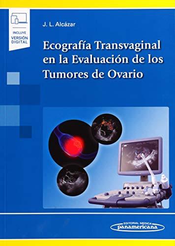 Ecografia transvaginal en la evaluacion de los tum