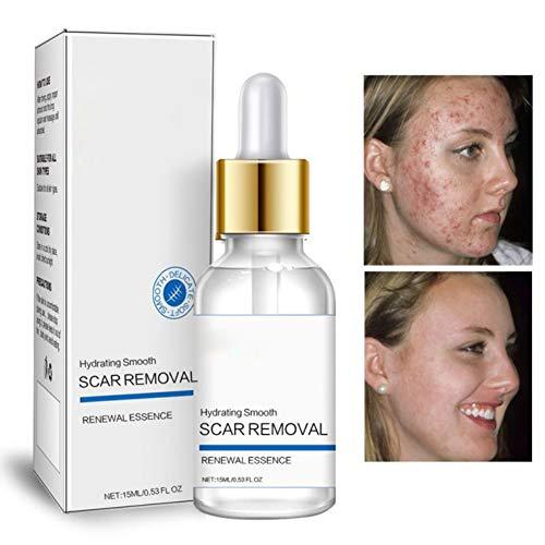 ROMANTIC BEAR Sérum pour l'enlèvement des cicatrices d'acné Réduit visiblement les cicatrices, les rides, les brûlures et les taches brunes (A)