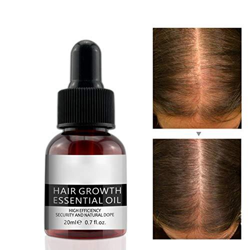 Symeas Hair Growth Huile Essentielle Traitement de perte de cheveux pour femmes hommes plus rapide et plus rapide pour la croissance des cheveux