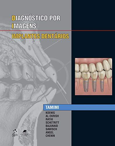 Especialidades em Imagens - Implantes Dentários