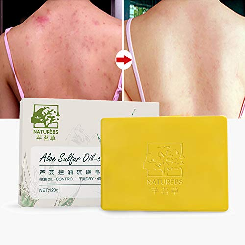 Symeas Pain de savon au soufre Barre de nettoyage au soufre Advanced Wash pour le corps acné et le rétrécissement des pores Savon savon artisanal