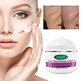 Scar Removal Cream For New and Old Scars,Stretch Mark Removal Gel Ointment, Multiuse Acne Scar Remover Fade Flatten Balm For face,C-Section,Burns, after surgery (1 Jar)