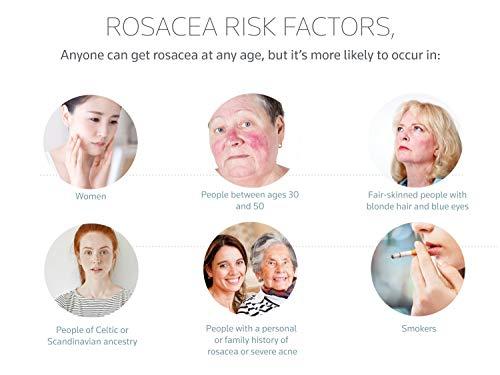 Prosacea – Controls Maskne Rosacea Symptoms of Redness, Pimples & Irritation – 0.75 Oz