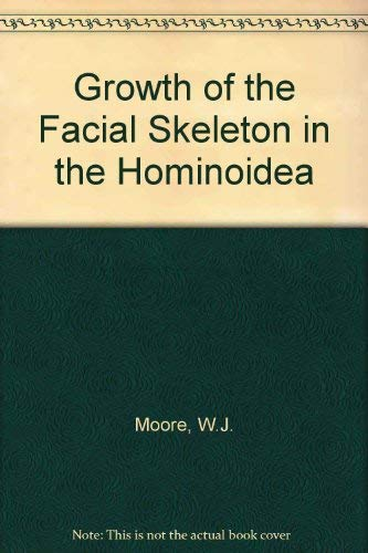 Growth of the Facial Skeleton in the Hominoidea