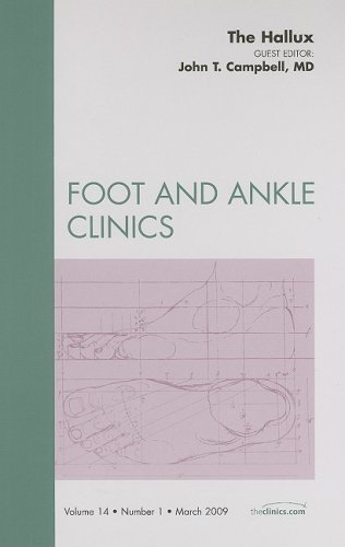 The Hallux, An Issue of Foot and Ankle Clinics, 1e: Number 1: Volume 14-1 (The Clinics: Orthopedics)