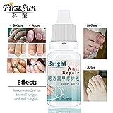 Quotrade Best Fungal Onychomycosis Toe Nail Treatment Serum Fungus Repair Nourish Nail Oil