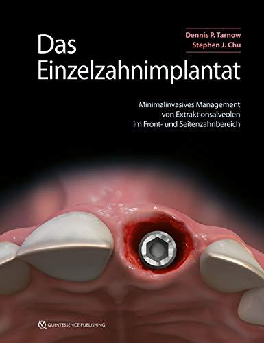 Das Einzelzahnimplantat: Minimalinvasives Management von Extraktionsalveolen im Front- und Seitenzahnbereich