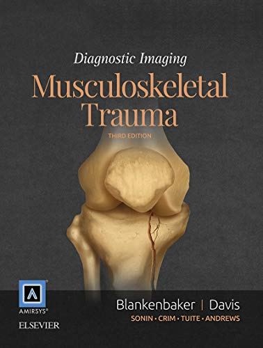 Diagnostic Imaging: Musculoskeletal Trauma E-Book (English Edition)