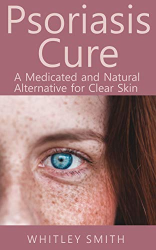 Psoriasis Cure: A Medicated and Natural Alternative for Clear Skin (English Edition)