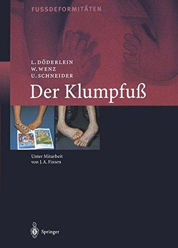Der Klumpfuss: Erscheinungsformen und Behandlungsprinzipien jeden Alters. Differentialdiagnose und Differentialtherapie
